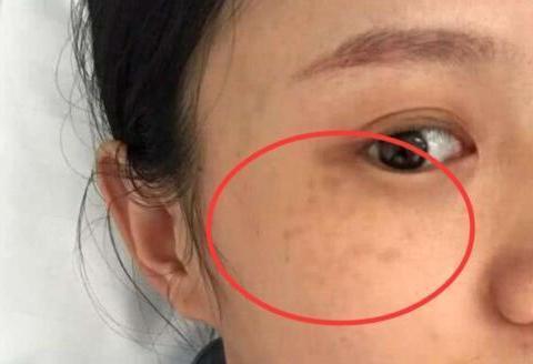 女生长期化妆皮肤变差?常吃这3种食物,补水抗皱祛色斑
