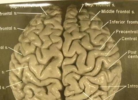 """当年偷走""""爱因斯坦大脑"""",将其切成240块的人,最后怎么样?"""