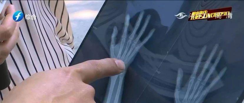 技术员被送餐小哥撞伤手指,要求数万元误工费合理吗?