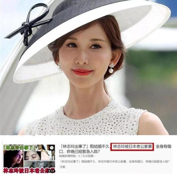 她不顾粉丝感受嫁给日本人,疑似遭遇家暴,却没有人同情