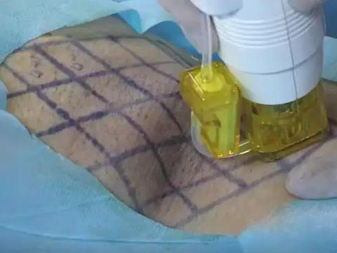 腋臭治疗的方法—黄金微针:侵入式点阵射频技术