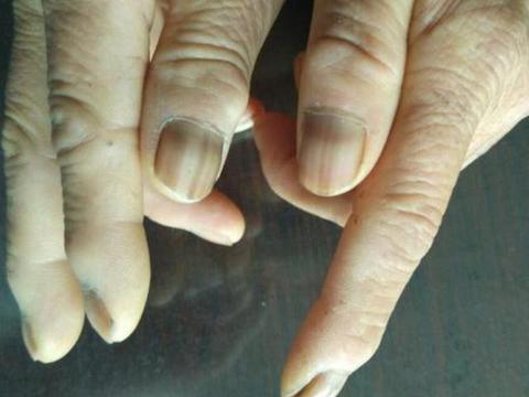 """肺癌不是悄无声息,手指出现3种""""异常"""",最好查一下肺部CT"""