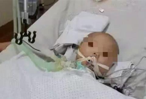 新生宝宝颅内出血,只因爷爷这个错误举动