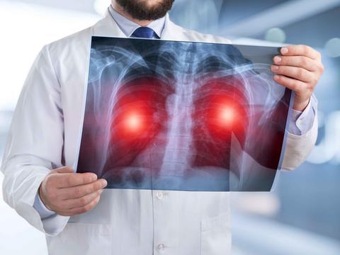 肺部有癌,身体知道!身上3处若有剧烈疼痛,小心肺癌已进入晚期