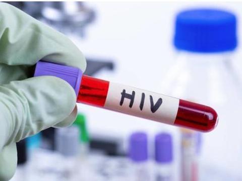 艾滋病潜伏期一点症状也没有?判断艾滋从6点入手