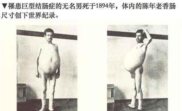 """29岁男子长期便秘被涨死,腹内18公斤""""巨型肠子""""被捧进博物馆"""
