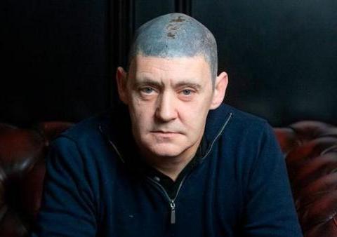 英国男子变光头抑郁自卑,无奈纹头发头皮发蓝成噩梦