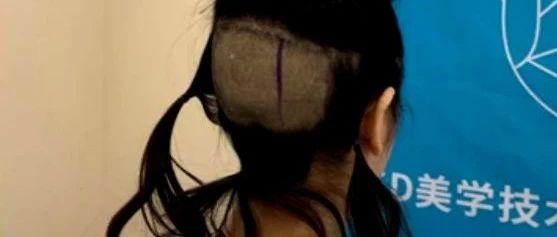"""太""""秃然""""!美女做植发手术,头发剃秃了,诊所不干了"""
