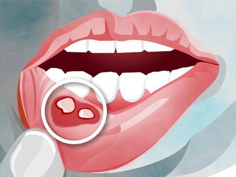 最容易察觉到的癌症-口腔癌,早期有4个症状,有人却一个都不知道