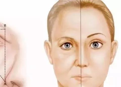 提眉手术多久恢复,做完后后老得快?