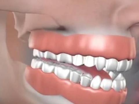 为什么有的人会有32颗牙齿?牙齿长得比别人多是好是坏
