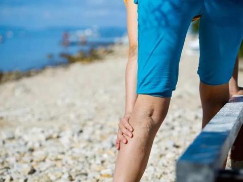 小腿静脉曲张的预防措施都有哪些呢?