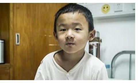 3岁男童患概率二百万分之一怪病,器官长成大人模样,不敢上厕所