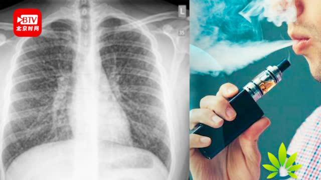 加医师协会认为或成电子烟新疾病