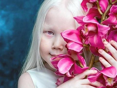 """身患白血病的8岁女孩被称为""""白雪公主"""",竟成了热门模特"""