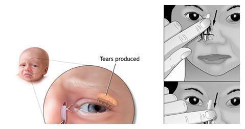 父母要小心宝宝的泪囊炎,会影响宝宝的视力
