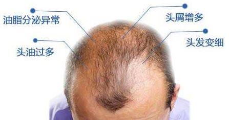 雄性激素脱发为什么那么难治