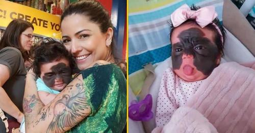 """宛如""""蝙蝠侠面具"""",女婴患上罕见的巨型黑色素痣"""