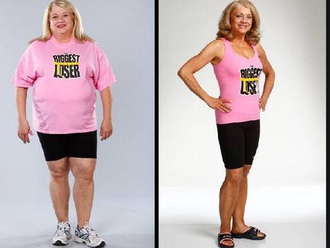 减重代谢手术减肥效果这么好,能不能用来美容?