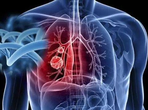 肺癌发生前都有哪些症状?营养师告诉你答案