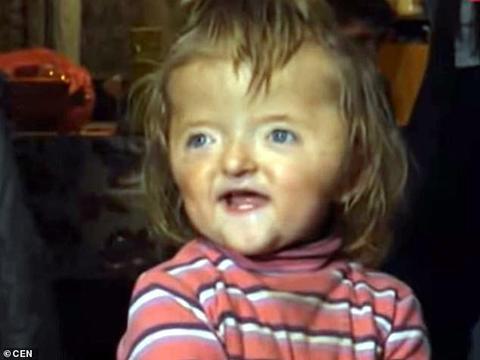 俄2岁畸形女孩手指融合,申请幼儿园因外貌被拒,政府送套房慰问