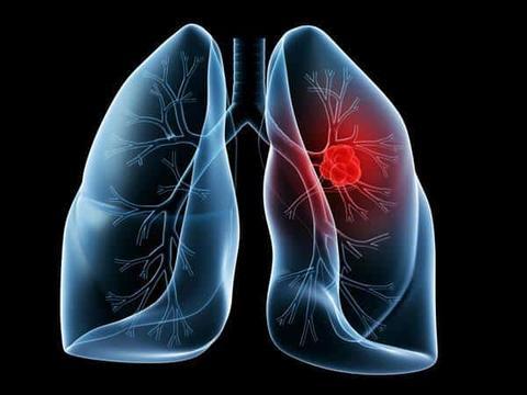 肺癌晚期,他吃稀有人参皂苷提高生活质量!