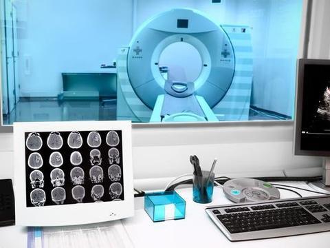55岁秦师傅突发视物模糊,诊断为脑梗,医生:高血压最怕这2件事