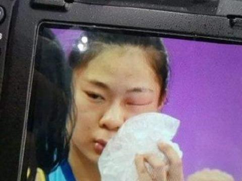 陈友泉世俱杯征途后遗症:朱婷手腕受伤,这位连眼睛都睁不开