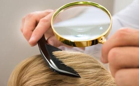 毛囊种植价格一般需要多少钱?和什么有关系?