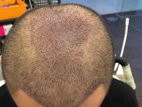 为什么植发后的血痂不能抠,抠了会抠掉毛囊吗?