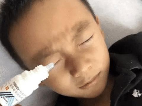 3岁孩子误把502胶水当滴眼液,多亏妈妈急中生智,保住了眼睛!
