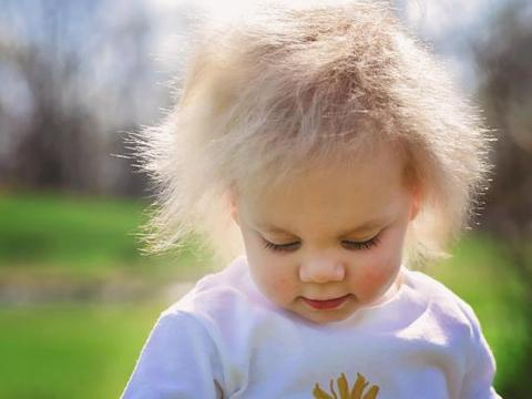 美国小女孩患罕见怪病,头发怎么梳都梳不直,发型酷似爱因斯坦
