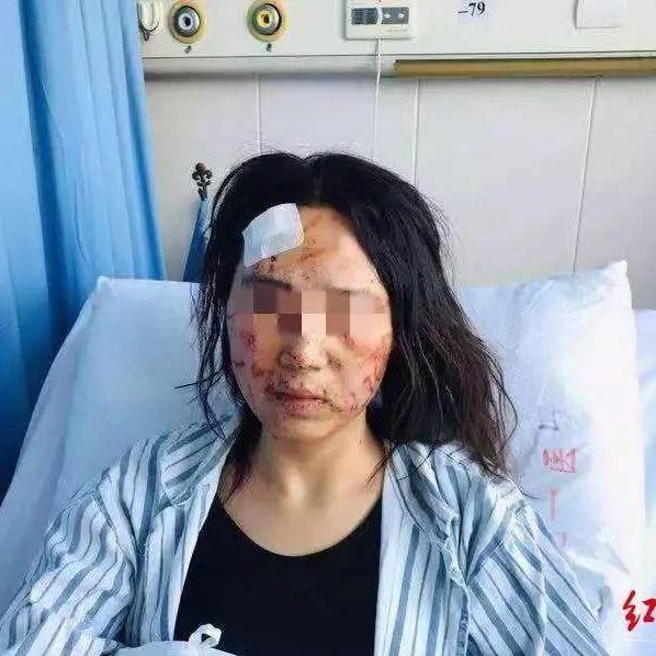 气愤!女子遭丈夫和公公当街暴打涂大便几乎毁容…警方和妇联都出手了