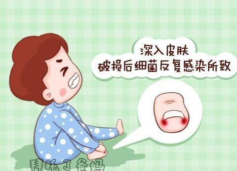 宝宝患上甲沟炎,竟是因为剪指甲造成,后果很严重