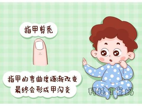 给宝宝剪指甲有讲究,方法不对小心剪出甲沟炎