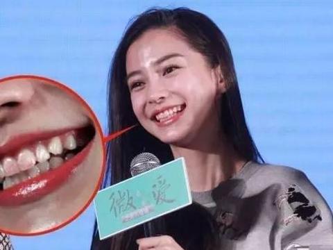 女星妆容翻车瞬间,Baby口红粘牙,杨幂双眼皮是认真的吗?