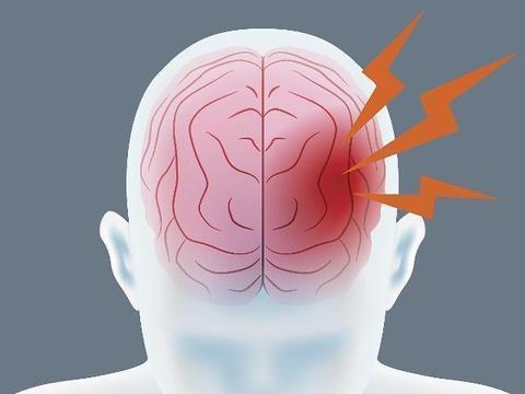如何搞清《麻醉知情同意书》说的麻醉风险——围术期脑卒中?