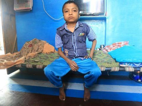 17岁印度男孩因怪病限制生长, 体重37斤身高仅一米