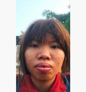 女子因外貌被老公抛弃,赴韩国整容归来后,想娶她的人排长队
