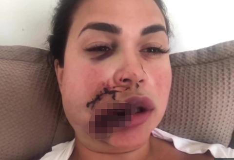 美女模特上厕所插队被打,脸部缝合高达90针,留下永久性伤疤