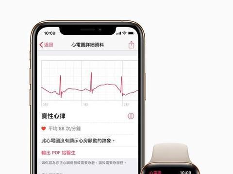 Apple Watch帮助肯塔基州一女士检测到了早期的心率异常