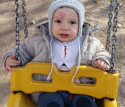 土耳其一宝宝天生长有爱心胎记,自带丘比特光环