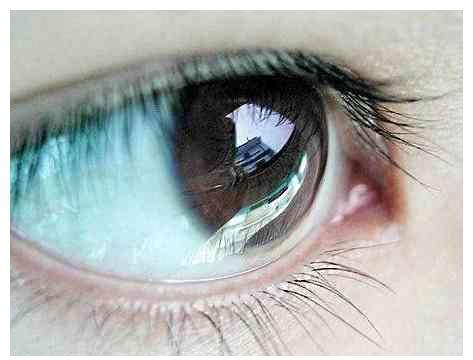 心理测试:你感觉哪只眼睛在微笑?测你有没有抑郁症的倾向!