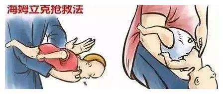 春节必备技能   儿童版海姆立克急救法一篇看懂