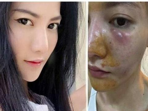 泰国女子打6年美白针惨遭毁容,靠打针治疗自称很后悔