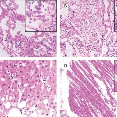 柳叶刀发布全球首份新冠肺炎病理报告,病毒主要攻击人体肺部