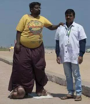 80后高材生长一条大象腿,100公斤,老婆都娶不到