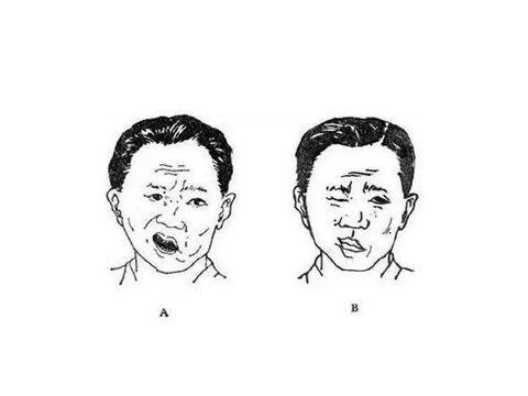 """""""左眼皮跳跳""""不一定好事会来到,四个早期症状,揪出面部痉挛"""