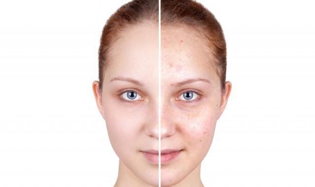 面部水疗怎么做 告诉你快速拥有好皮肤的小秘诀