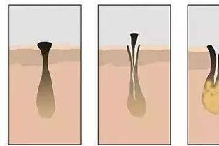 怎样去黑头收缩毛孔粗大
